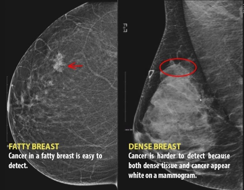 Dense breast tissue can obscure cancer in a mammogram image. (Submitted by Dense  Breasts Canada)
