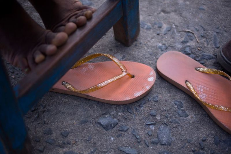Feet of one of the girls who was in the trial.