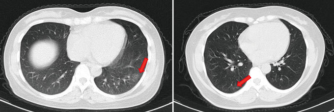 CT scan of SARS-CoV-2 patient's lungs